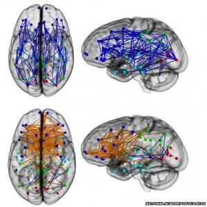 cerveau homme femme different cable reseau neuronne